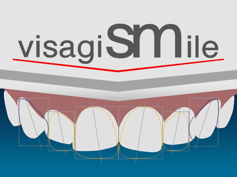 VisagiSMile project